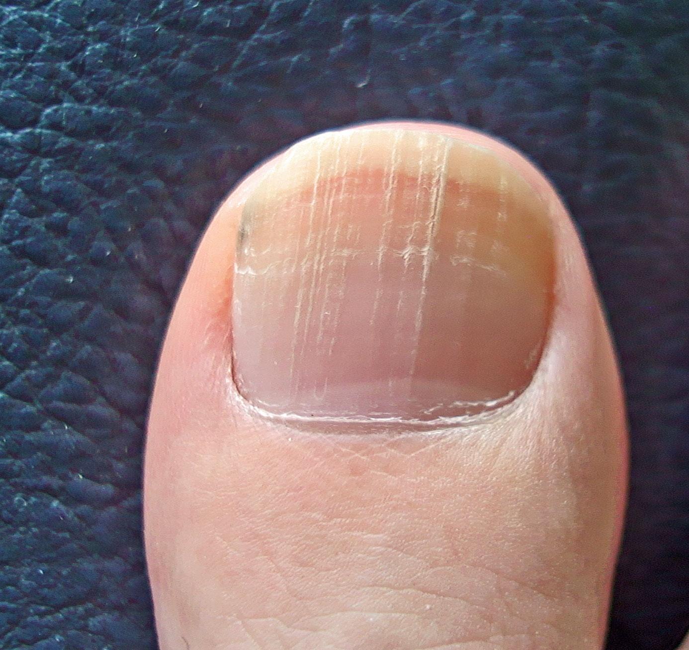 変色 爪 足 の